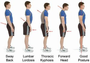 Bad Postures That Are Ruining Your Health & How to Correct Them